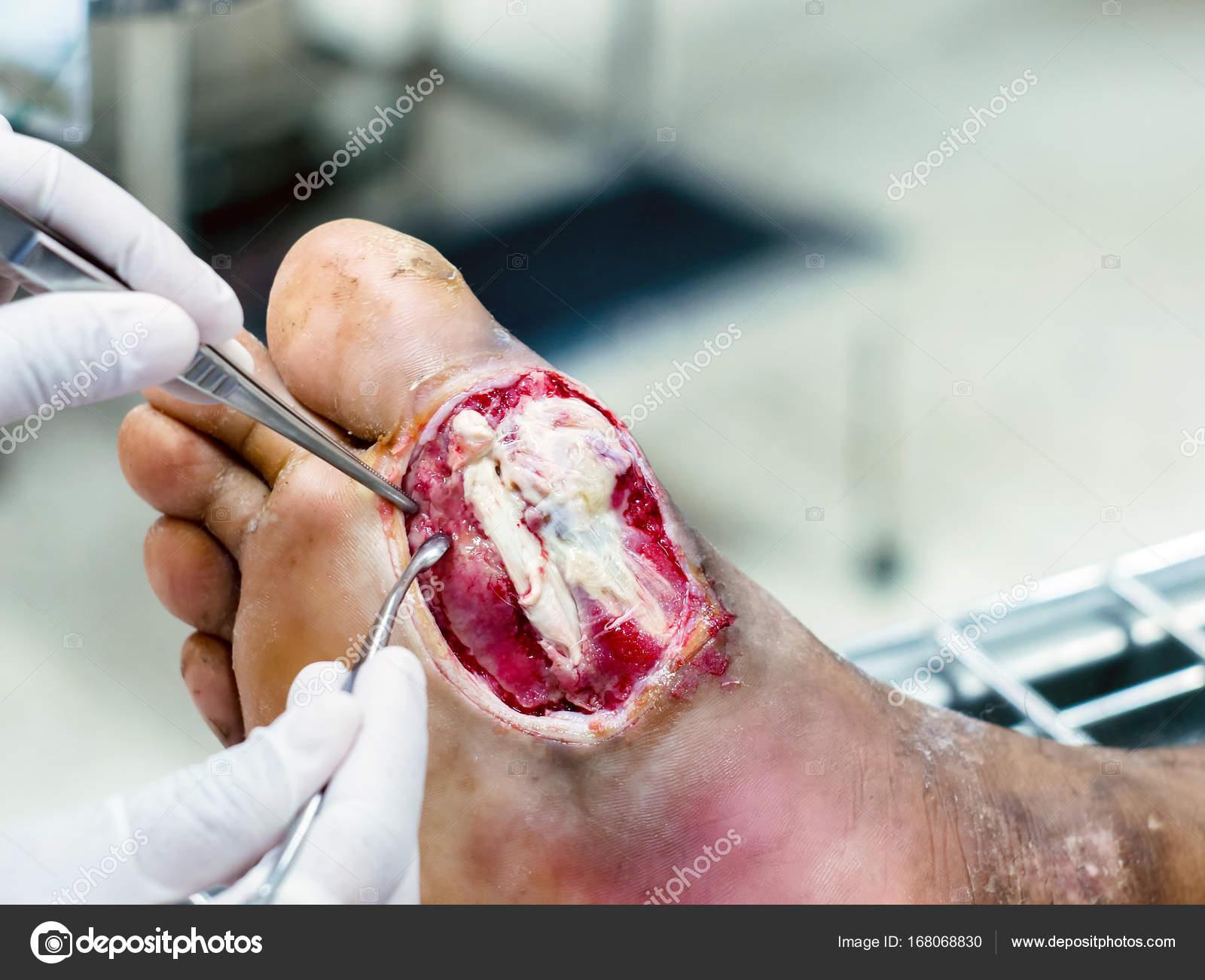 Fotos: pie diabetico herida | Heridas diabéticas a menudo ...