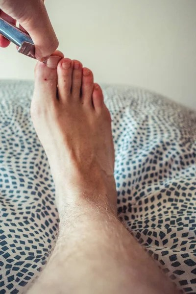 Ugly Toe Pics : Broken, Hairy, Stock, Images, Everypixel