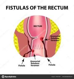 types of fistulas of the rectum paraproctitis anus abscess of the rectum  [ 1600 x 1700 Pixel ]