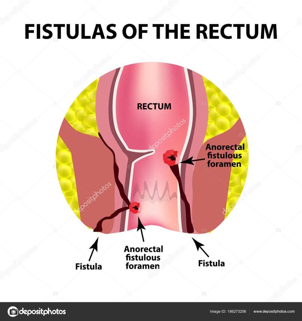 medium resolution of types of fistulas of the rectum paraproctitis anus abscess of the rectum