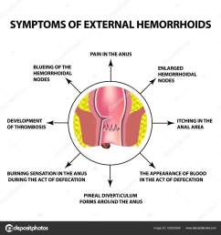 the hemorrhoidal node in the rectum anus infographics vector illustration on isolated background vector by  [ 1600 x 1700 Pixel ]