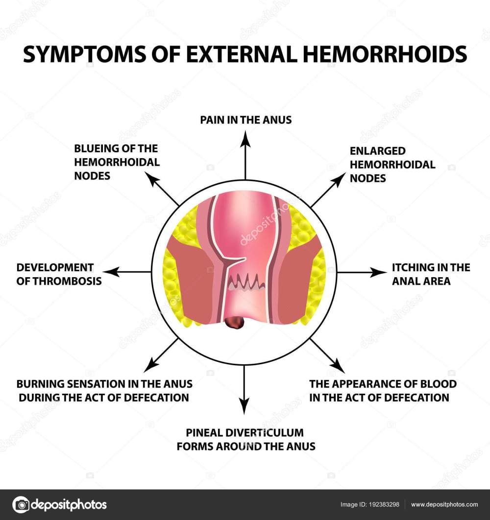 medium resolution of the hemorrhoidal node in the rectum anus infographics vector illustration on isolated background vector by