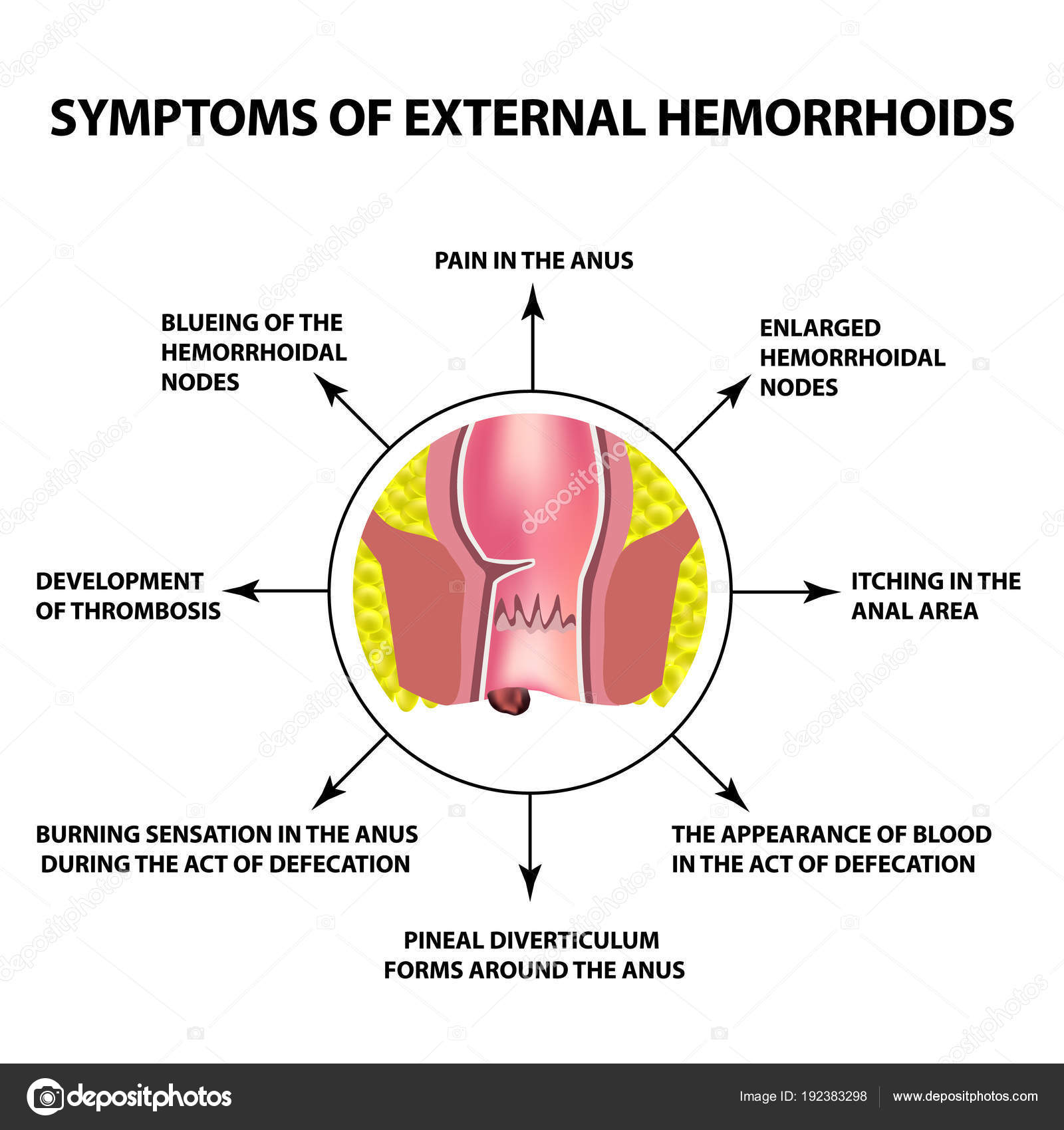 hight resolution of the hemorrhoidal node in the rectum anus infographics vector illustration on isolated background vector by