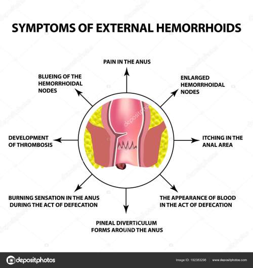 small resolution of the hemorrhoidal node in the rectum anus infographics vector illustration on isolated background vector by
