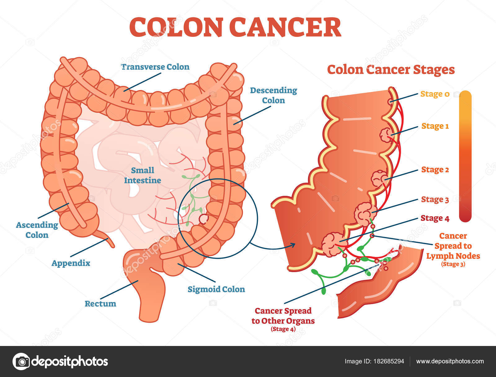 hight resolution of colon cancer medical vector illustration scheme anatomical diagram with cancer stages and spreading to other organs vector by normaals