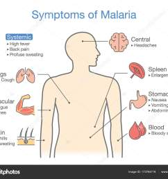diagram for patient with malaria symptoms appear illustration about medical and health vector by solar22 [ 1600 x 1259 Pixel ]