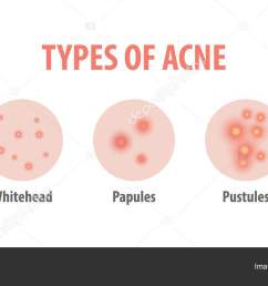 types of acne diagram illustration vector on white background b stock vector [ 1600 x 740 Pixel ]