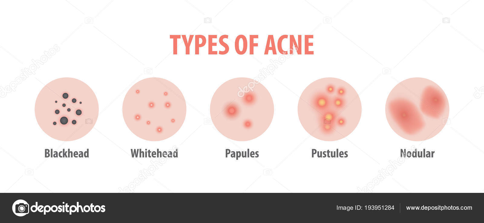 hight resolution of types of acne diagram illustration vector on white background b stock vector