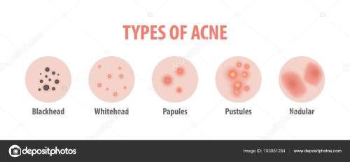 small resolution of types of acne diagram illustration vector on white background b stock vector