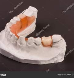 a plaster cast of teeth with removable partial denture on a dark background  [ 1600 x 1167 Pixel ]