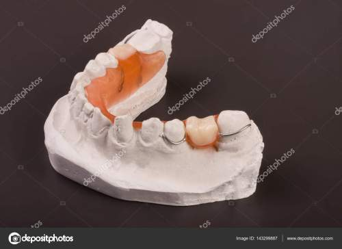 small resolution of a plaster cast of teeth with removable partial denture on a dark background