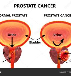 prostate cancer 3d illustration showing normal prostate gland and presence of tumor inside prostate gland which compresses urethra photo by katerynakon [ 1600 x 983 Pixel ]