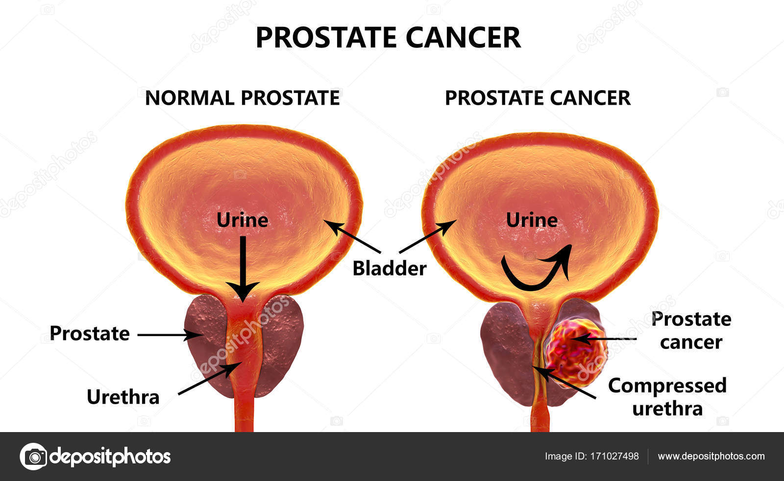 hight resolution of prostate cancer 3d illustration showing normal prostate gland and presence of tumor inside prostate gland which compresses urethra photo by katerynakon