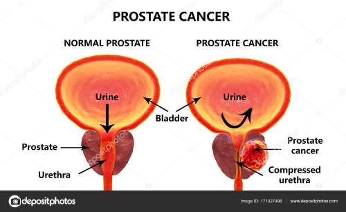 small resolution of prostate cancer 3d illustration showing normal prostate gland and presence of tumor inside prostate gland which compresses urethra photo by katerynakon