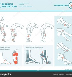 foot pain leg pain and arthritis infographic stock vector [ 1024 x 883 Pixel ]