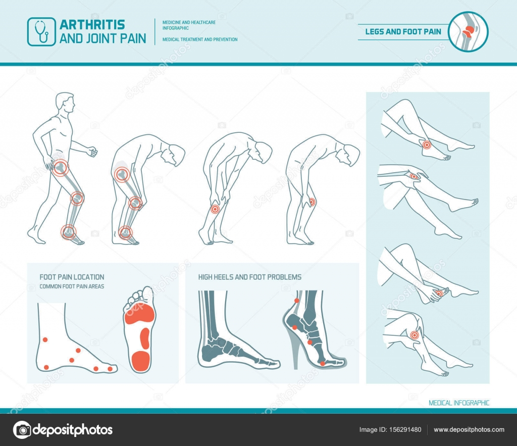 hight resolution of foot pain leg pain and arthritis infographic stock vector
