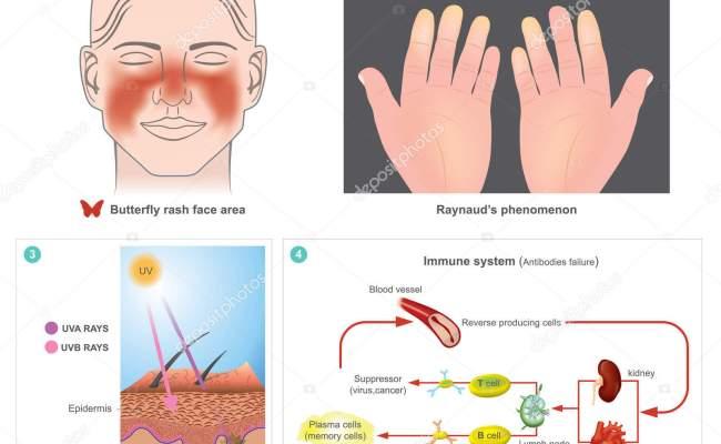 Systemic Lupus Erythematosus Sle Stock Vector