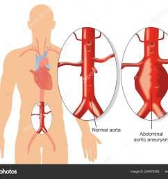 abdominal aortic aneurysm diagram stock illustration [ 1600 x 1201 Pixel ]