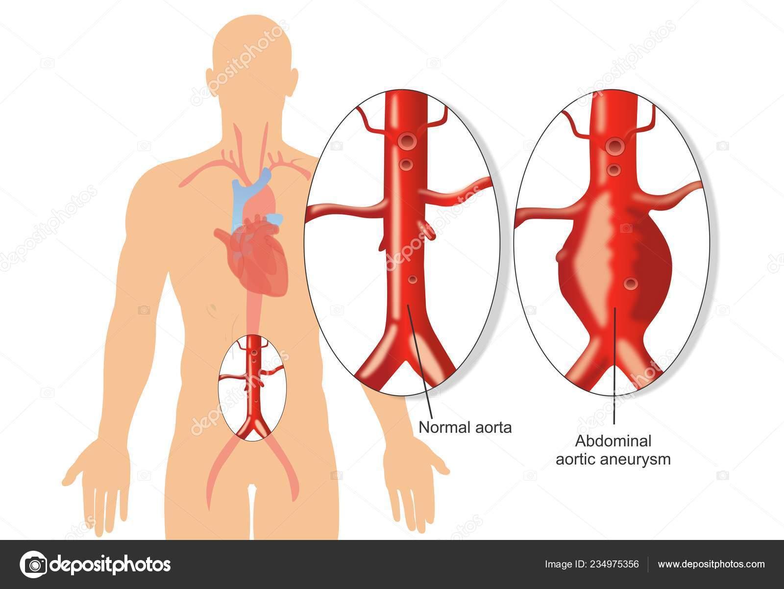 hight resolution of abdominal aortic aneurysm diagram stock illustration
