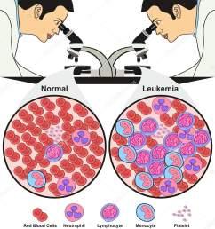 leukemia diagnosis diagram showing doctor lab looking microscope nurse lab diagram doctor lab diagram [ 1389 x 1700 Pixel ]
