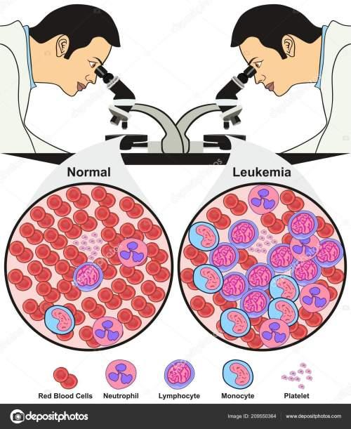 small resolution of leukemia diagnosis diagram showing doctor lab looking microscope nurse lab diagram doctor lab diagram
