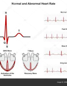 Normal and abnormal heart rate infographic diagram including activation of atria ventricle recovery wave also chart fast slow irregular rh depositphotos