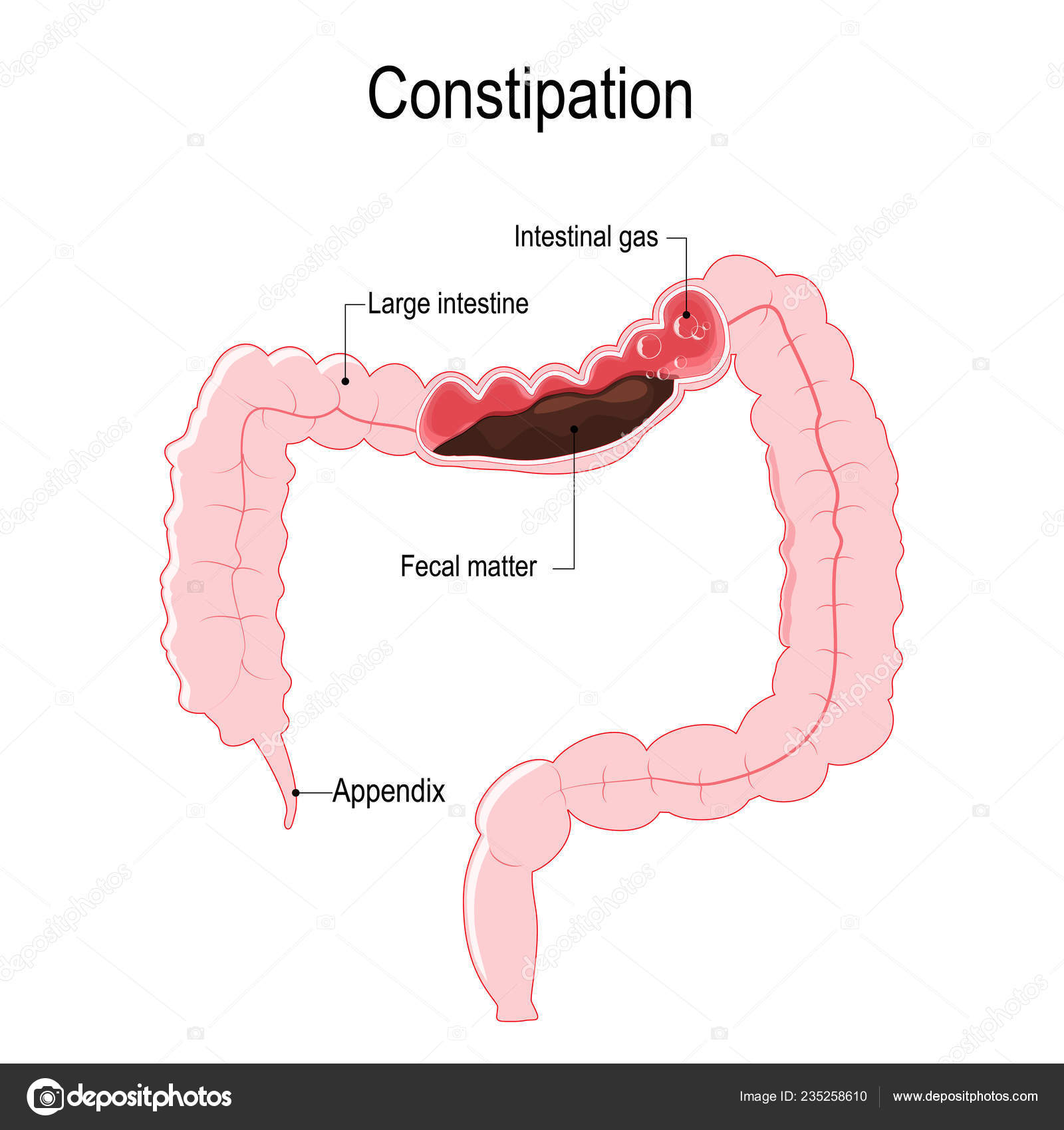 hight resolution of vector diagram represent the human large intestine with fecal matter and bowel gas bubbles illustration for biological science and medical use