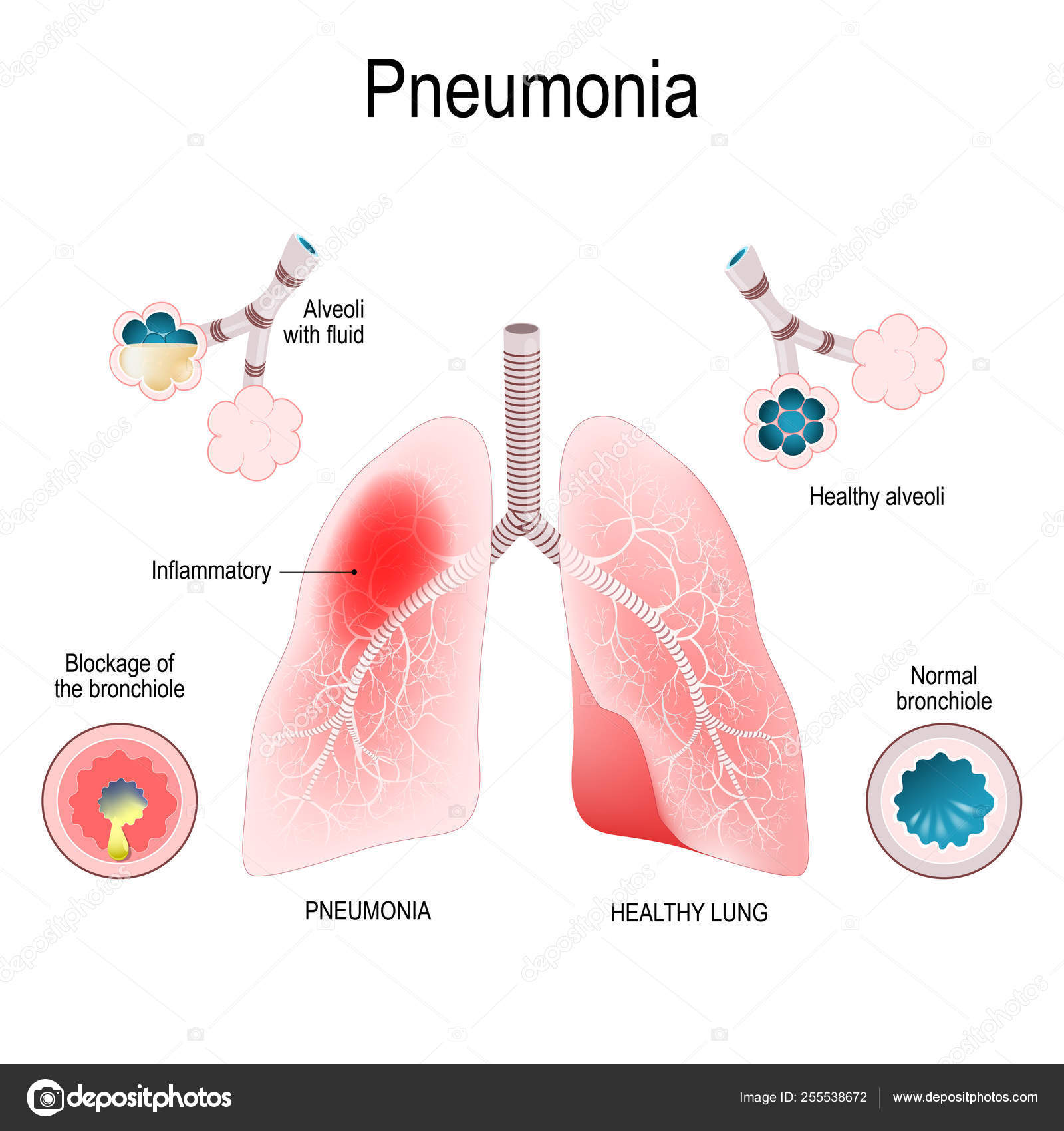 hight resolution of pneumonia difference and comparison of healthy lungs bronchiol archivo im genes vectoriales