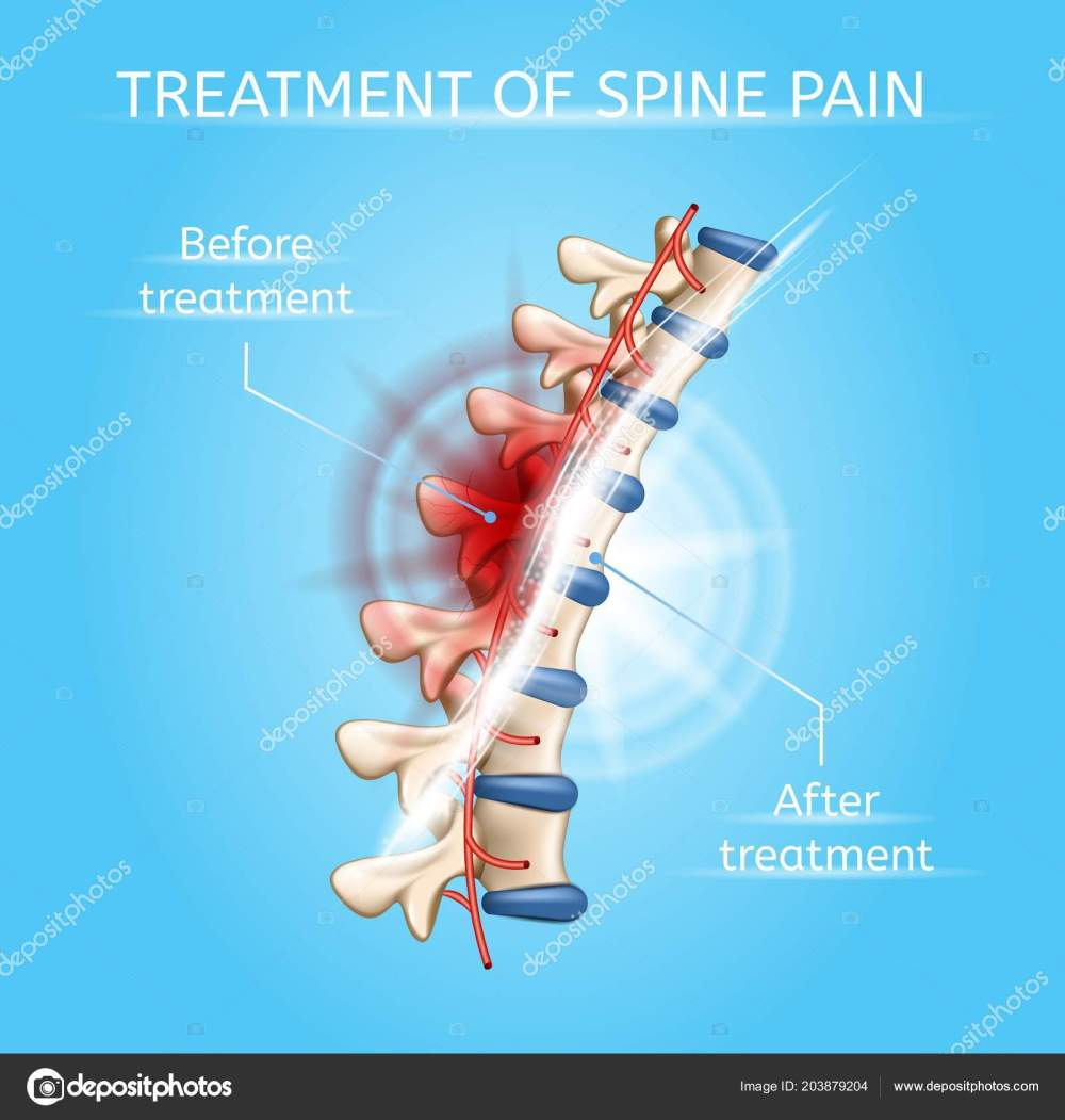 medium resolution of treatment of spine pain realistic vector poster or chart with damaged and healthy vertebral column before and after medical procedures illustration