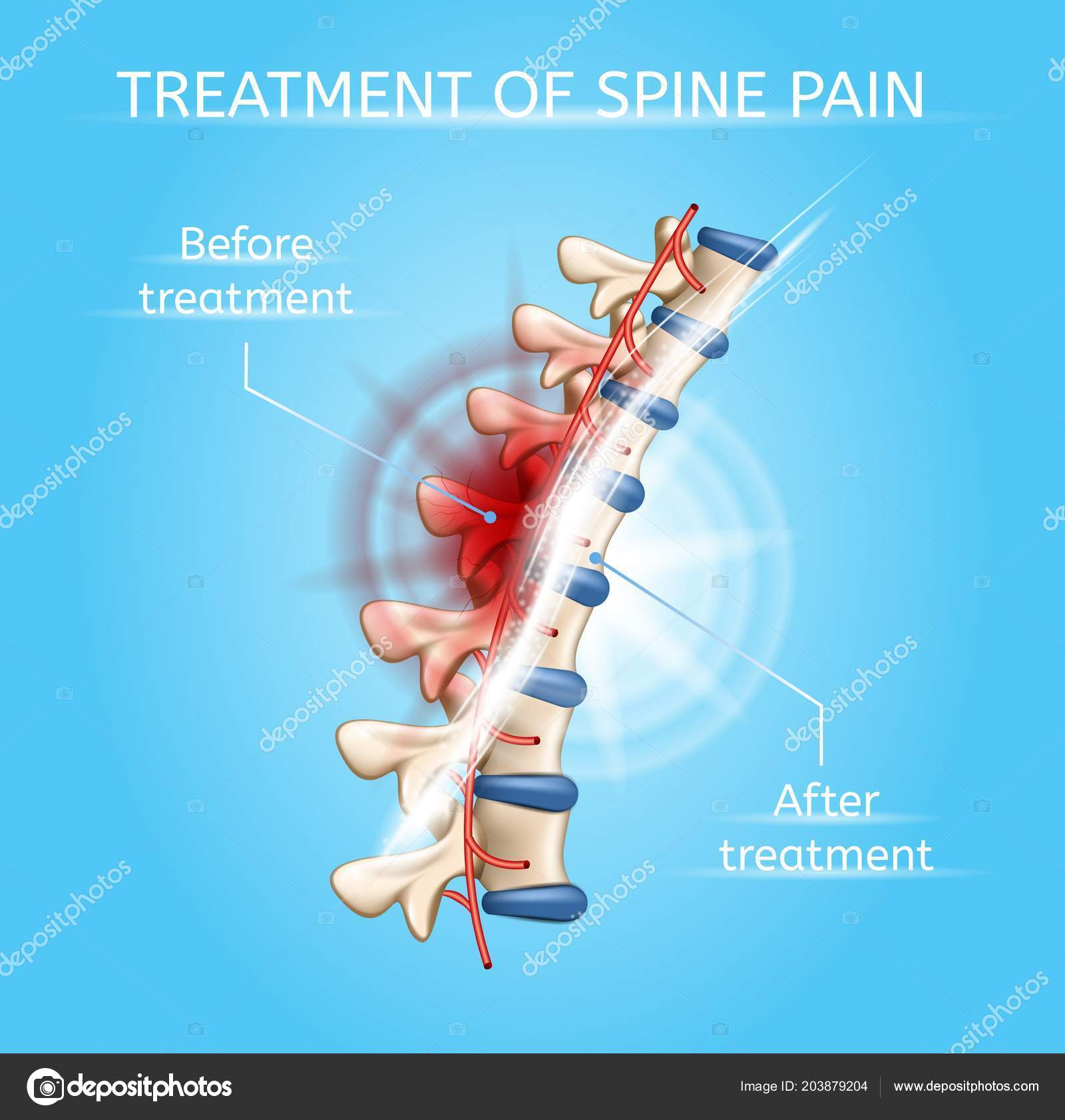 hight resolution of treatment of spine pain realistic vector poster or chart with damaged and healthy vertebral column before and after medical procedures illustration