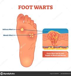 vector illustration of foot warts medical scheme with both types solitary and mosaic warts close up cross section with detailed wart and its own supply  [ 1600 x 1638 Pixel ]