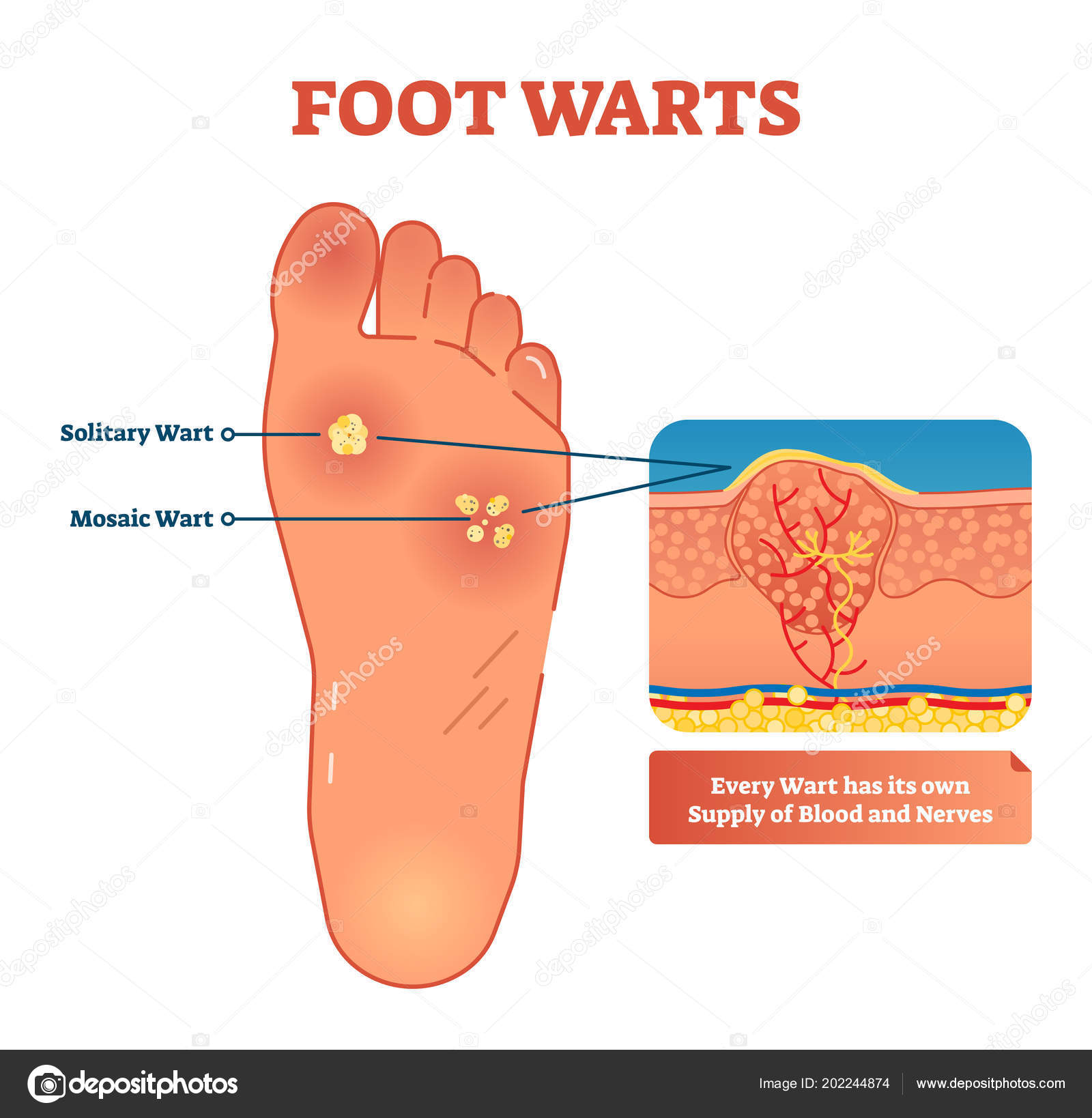 hight resolution of vector illustration of foot warts medical scheme with both types solitary and mosaic warts close up cross section with detailed wart and its own supply