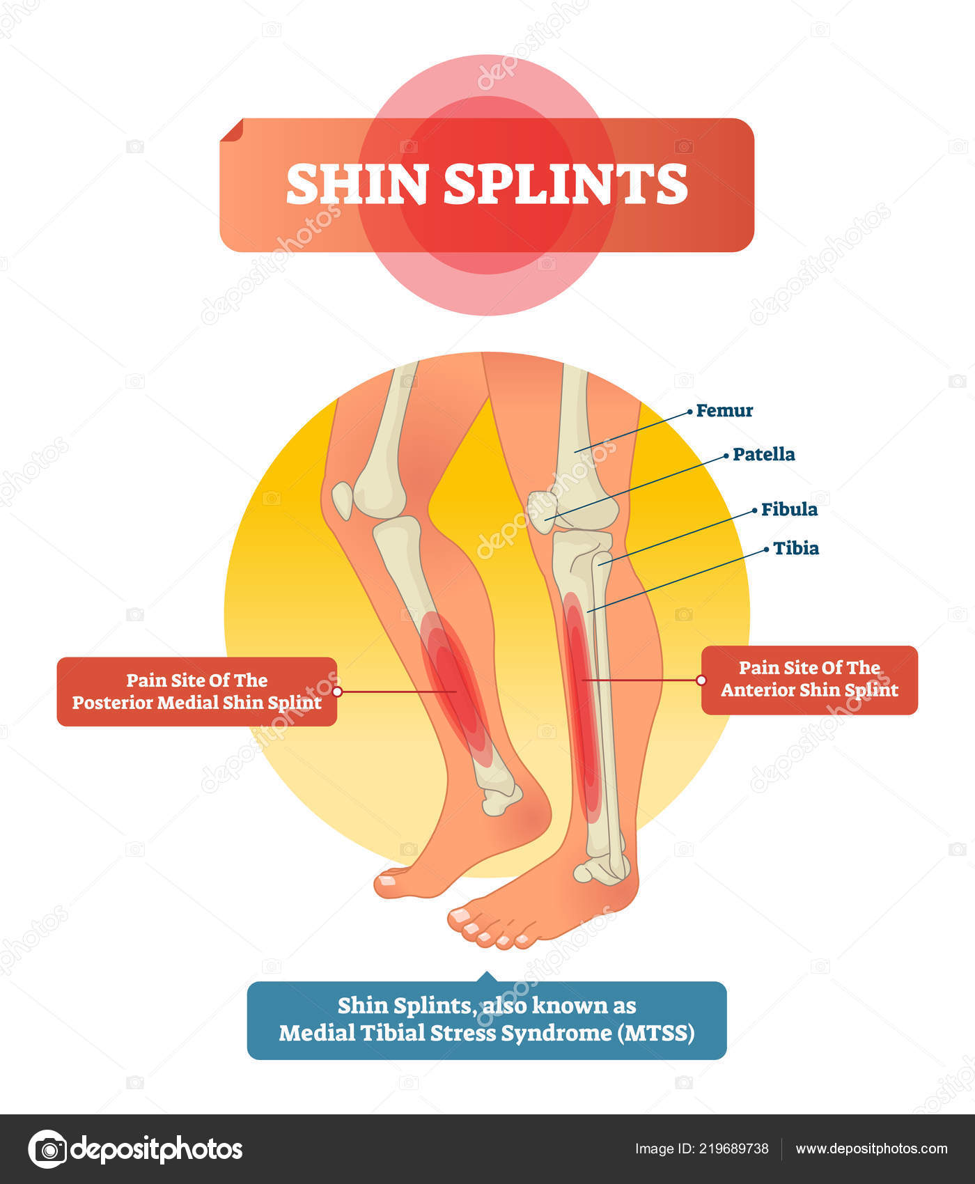hight resolution of leg muscle sport trauma and bone pain labeled diagram isolated femur patella fibula tibia and foot bones with shown injury location