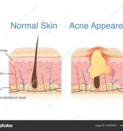 difference normal skin layer skin layer acne illustration dermatology diagram stock vector [ 1600 x 1207 Pixel ]