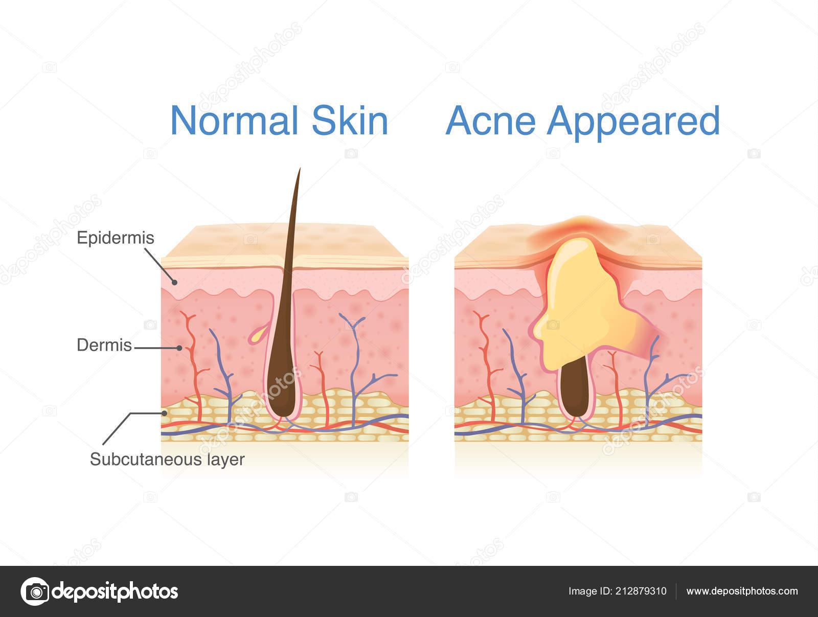 hight resolution of difference normal skin layer skin layer acne illustration dermatology diagram stock vector