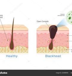 healthy skinbacteria in blackhead with human skin layer structure and healthy skin illustration about dermatology diagram u2014 vector by solar22 [ 1600 x 1203 Pixel ]
