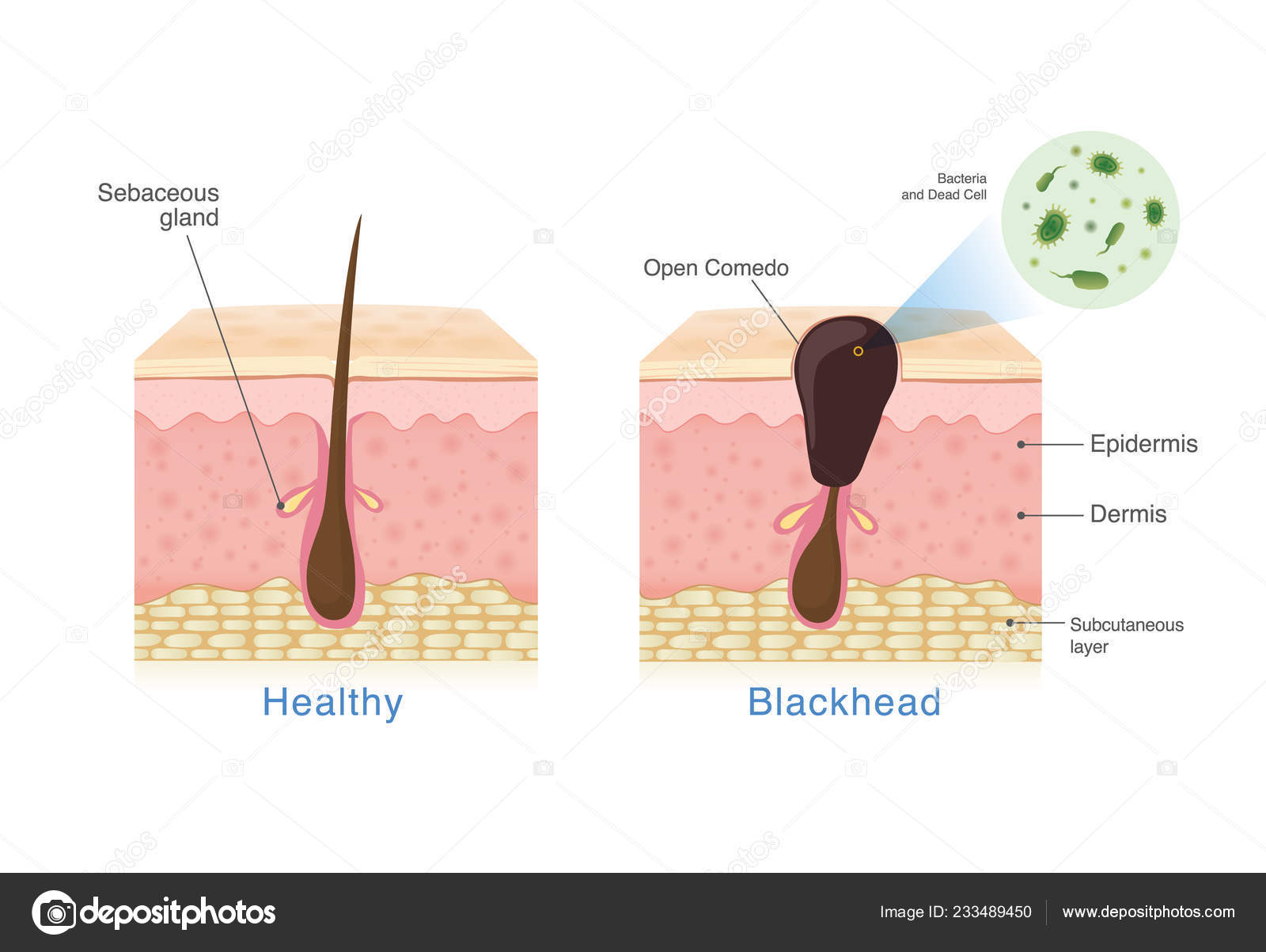 hight resolution of  healthy skinbacteria in blackhead with human skin layer structure and healthy skin illustration about dermatology diagram u2014 vector by solar22