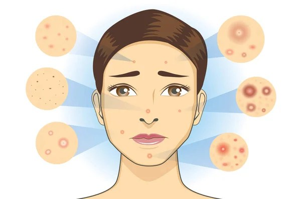 acne face diagram 1999 honda civic fuse stock vectors royalty free illustrations all type icon facial skin woman illustration dermatology vector