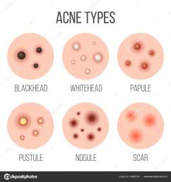 creative vector illustration types of acne pimples skin pores blackhead whitehead scar comedone stages diagram isolated on transparent background  [ 1600 x 1700 Pixel ]