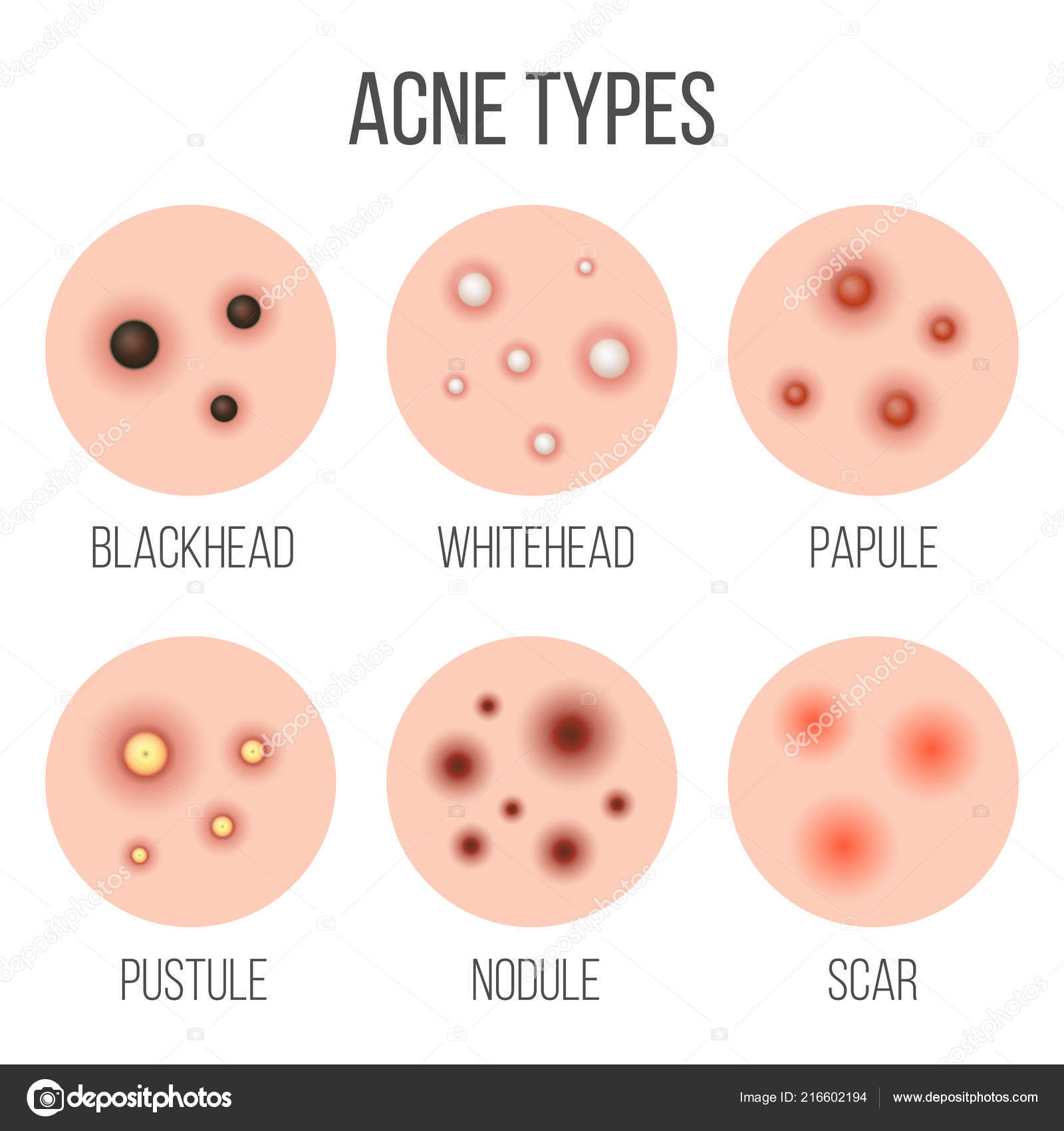 hight resolution of creative vector illustration types of acne pimples skin pores blackhead whitehead scar comedone stages diagram isolated on transparent background