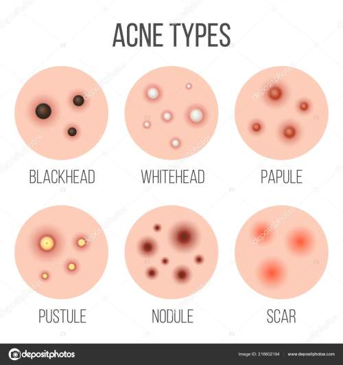 small resolution of creative vector illustration types of acne pimples skin pores blackhead whitehead scar comedone stages diagram isolated on transparent background