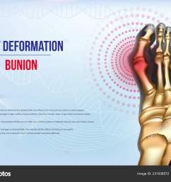 foot deformation bunion sore joints concept realistic bones of foot skeleton of human leg horizontal light blue banner for advertising  [ 1600 x 1100 Pixel ]
