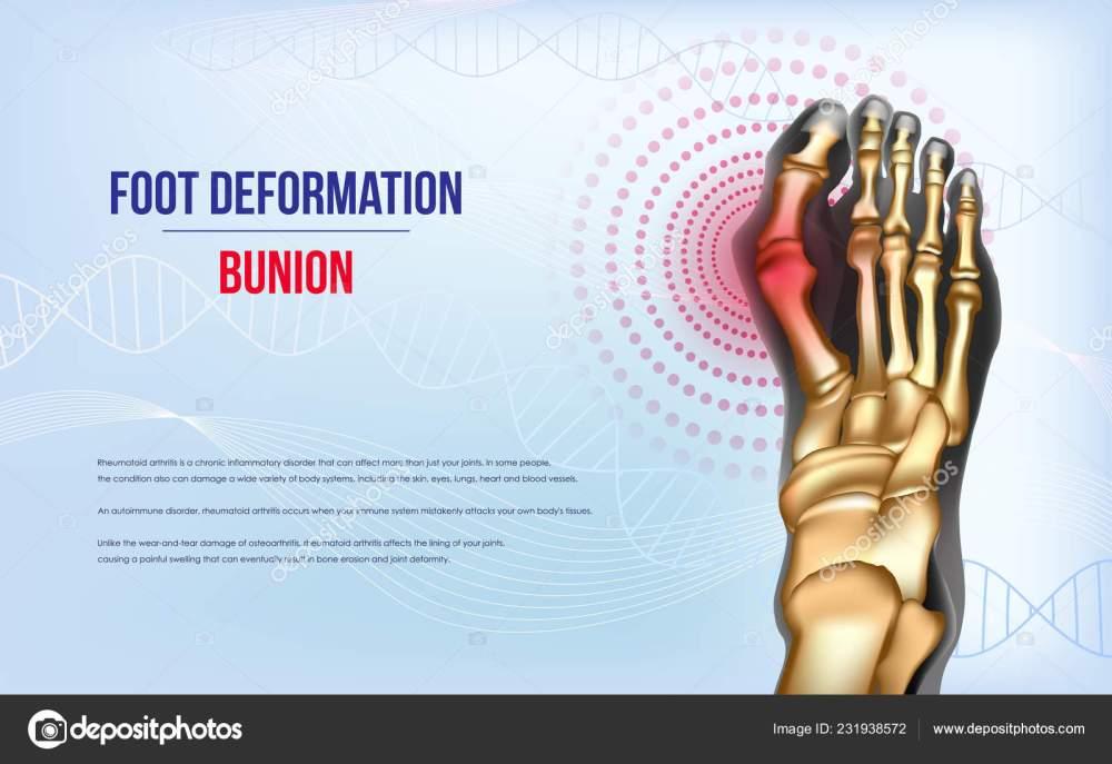 medium resolution of foot deformation bunion sore joints concept realistic bones of foot skeleton of human leg horizontal light blue banner for advertising