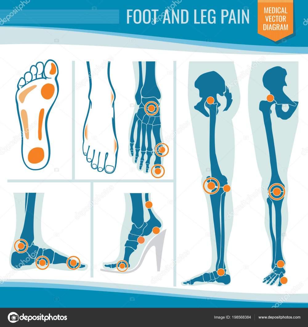 medium resolution of foot and leg pain arthritis and rheumatism orthopedic medical vector diagram stock vector
