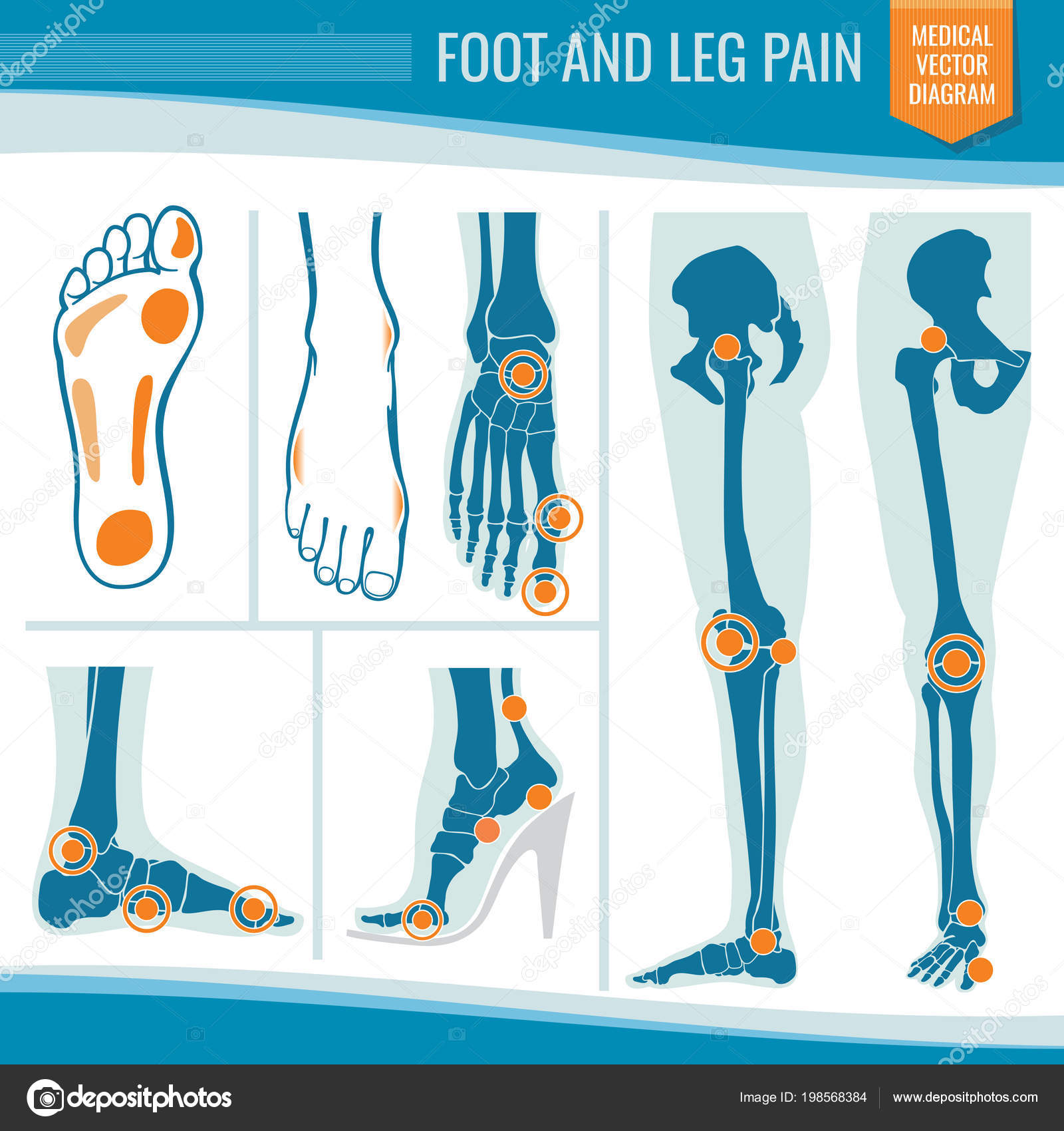 hight resolution of foot and leg pain arthritis and rheumatism orthopedic medical vector diagram stock vector