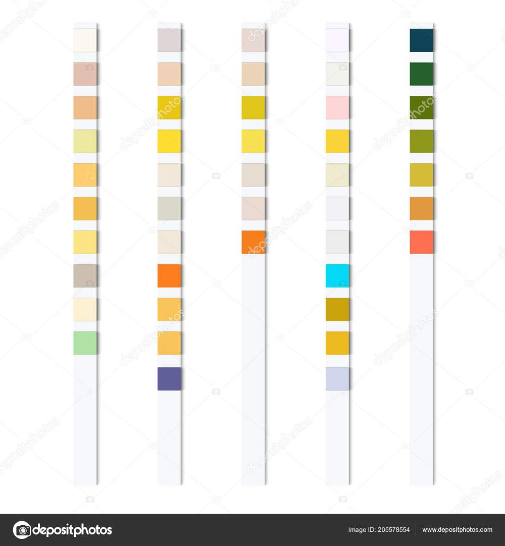 medium resolution of reagent test strips urinalysis automatic analyzer physical chemical properties cellular stock vector
