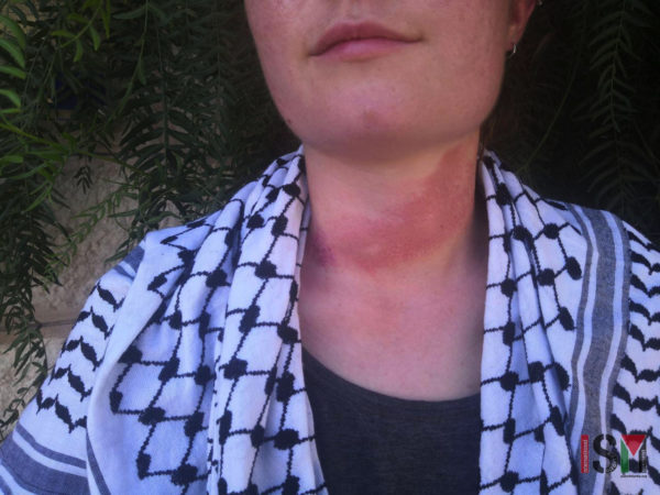 ISMer's neck shows strangulation marks where she was dragged across the floor by Israeli border police with her Kaffiyeh. Photo: ISM