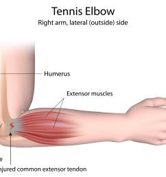 epicondylitis tennis elbow golfer s elbow  [ 5000 x 3746 Pixel ]