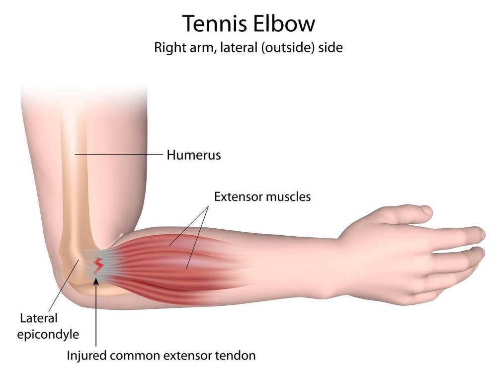medium resolution of epicondylitis tennis elbow golfer s elbow