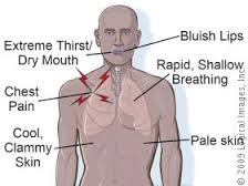 A diagram showing the main symptoms of Hypothermia, including blueish lips, extreme thirst or dry mouth, rapid shallow breathing, chest pain, pale skin, cool clammy skin. Source: Mtrosttotherescue